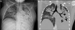 A) Radiografía de tórax: se observa múltiples zonas cavitarias, zona de condensación basal izquierda, patrón reticulonodular. B) Reconstrucción coronal de tomografía de tórax en ventana para mediastino con afectación del espacio intersticial de tipo reticulonodular con predominio derecho, cavernas en pulmón izquierdo.
