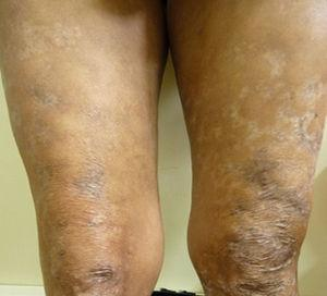 Scars of lesions in lower limbs after treatment.