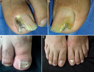 Clinical forms of onychomycosis. (a) Lateral subungual onychomycosis (LSO). (b) Distal subungual onychomycosis (DSO). (c) Total dystrophic onychomycosis (TDO). (d) Proximal subungual onychomycosis (PSO).