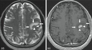 Axial cut of contrast MRI of the brain. On the left, T2-weighted image showing hyperintense left frontal region marked with arrows. On the right, T1-weighted image showing perilesional hypointensity and central hyperintensity of the left frontal region marked with arrows.