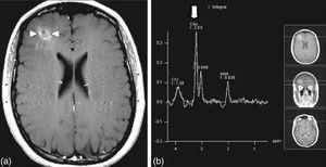Spectroscopy of right frontal lesion marked with arrows on the image to the left; and the image to the right marked with the arrow shows an increase in choline representing the accelerated formation of cell membranes compatible with metastatic lesion.