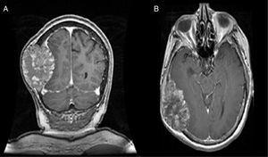 Magnetic resonance of the brain, T1-weighted sequence image with contrast. A shows the coronal cut and B the axial cut, with the presence of a hyperintense image in the right parietal–temporal–occipital with bone infiltration and displacement of brain parenchyma.