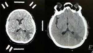 Contrast-enhanced CT scan of the left side of the brain showing stereotactic frame and fiducials; contrast medium enhancement of left parietal region showing tumour lesion with considerable perilesional oedema. Follow-up non-contrast CT scan of the right side of the brain showing total resection of the lesion with hypodense image denoting gliosis in left parietal lobe.