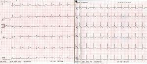 ECG on the patient's arrival at the emergency department showing sinus rhythm with new pattern of incomplete right bundle branch block with obvious changes in repolarisation not present on the baseline ECG.