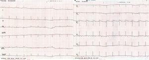 The patient's baseline ECG showing sinus rhythm with biphasic T waves in V3 and negative T waves in V4 to V6. (An echocardiogram and stress test were performed with no pathological findings.)