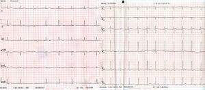 ECG after 2 days of the patient's clinical course showing sinus rhythm and correction of the pattern of right bundle branch block.