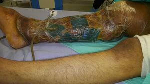 Limb after graft and placement of ABThera-VAC system.