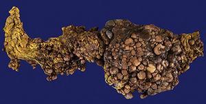 Omental tumour (external surface). Size: 50cm×30cm×15cm. 3.5kg.