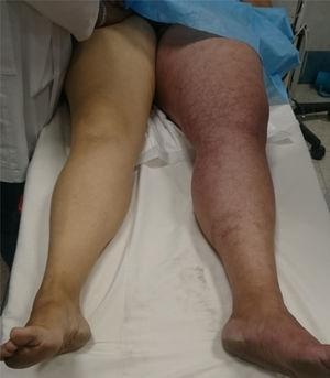 Oedema of the left leg with cyanosis.