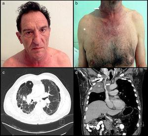 A 57-year-old man and chronic smoker with bullous emphysema and Horner's syndrome. (a) Eyelid pseudoptosis and mild oedema on the right half of the face. (b) Neck vein distension (arrow) and collateral venous network with oedema in the right hemithorax (asterisk). (c) Lung parenchyma with subpleural bullae and septal thickening (asterisk). (d) SVC compression (arrow) due to a right-side Pancoast tumour (asterisk).