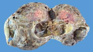 Right ovarian tumour. Lesion of 23.5×18.8×7.5cm weighing 500g, with a smooth, bright, intact capsule, a heterogeneous cut surface, solid brown areas occupying approximately 70% of the lesion and cystic areas occupying the remaining 30%.