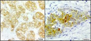 Microphotographs from an immunohistochemistry study with an immunoperoxidase technique performed on the right ovarian tumour showing positivity for anti-CD56 antibody in membrane in tumour cells, and cytoplasmic and membrane positivity for anti-inhibin antibody in tumour cells.