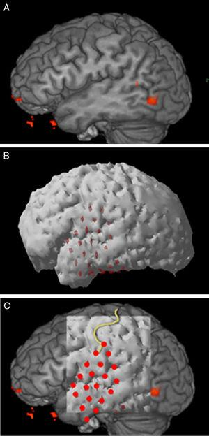 3D reconstruction and correlation in area 4, patient 3. A: Presurgical fMRI. B: Postsurgical structural MR reconstruction. C: Correlation of both studies, the central sulcus and grid electrodes have been highlighted.