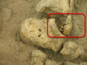Detalle del pie izquierdo del esqueleto atribuido al Padre Kino; nótese el proceso infeccioso en la epífisis distal del peroné (foto P. Hernández).