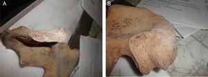 A y B. Acercamiento de la sínfisis púbica y de la carilla articular del ilíaco, a partir de las cuales se efectuó la estimación de la edad a la muerte (fotos P. Hernández).