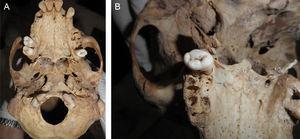 A y B. Detalle de la región basal y detalle de la región palatina posterior respectivamente (foto P. Hernández 2013).