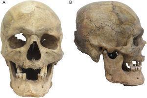 Cráneo atribuido a Eusebio Francisco Kino, en norma frontal (A) y lateral (B) (foto P. Hernández).