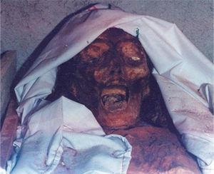 Cadáver corificado, en el cual la piel aparenta haber estado bajo un proceso de curtido. La solución de continuidad de la piel corificada probablemente se haya representado en la iconografía de Ah P'uuch. Fotografía de Lizbeth Rodríguez (2001).