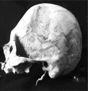 Skull in left lateral view, showing anteroposterior cultural flattening of the tabular erect type (Sak Tat rock-shelter)