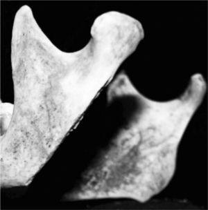 Unhealed chop mark of an adult mandible (Sak Tat rock-shelter)