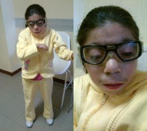 Fenotípicamente en el síndrome de Cornelia de Lange observamos microcefalia, cuello corto, estatura corta, extremidades con atrofia muscular, manos y pies pequeños.