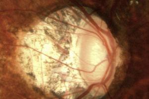 Fotografía de nervio óptico en un paciente miope con glaucoma; se nota una papila oblicua vertical con atrofia peripapilar amplia y una excavación vertical de 0.8.