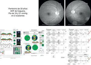 Caso clínico de mujer de 33 años, hipertensa ocular con estructuras aparentemente normales y escalón nasal persistente en serie de estudios.