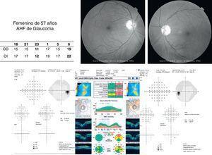 Caso clínico de mujer de 57 años de edad con AHF de glaucoma, curva horaria positiva tanto para picos hipertensivos como para variabilidad, con campos visuales normales y OCT alterado para el ojo izquierdo, con diagnóstico de glaucoma preperimétrico.
