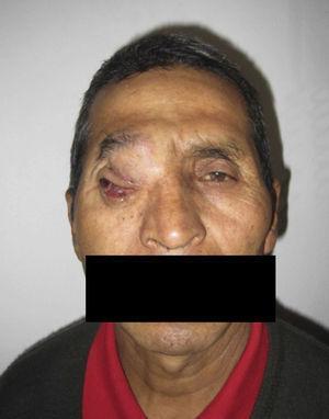 Vista frontal del tumor al ingreso.