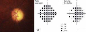 Apariencia del nervio óptico izquierdo, ligeramente borroso por presencia de vitreítis difusa, mostrando una excavación significativa (relación copa/disco de 0.95) y un campo visual severamente deteriorado por glaucoma secundario avanzado.