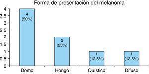 Forma de presentación del melanoma.