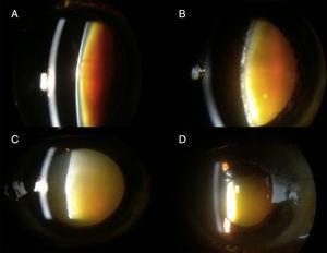 Tipos de cataratas incluidas en el estudio. 1A: Catarata negra; B: catarata madura; C: Catarata morganiana intumescente; D: catarata morganiana clásica.