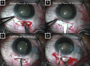 A: Primer plano de la incisión esclerocorneal. B: Segundo plano de la incisión esclerocorneal. C: Luxación del núcleo a cámara anterior. D: extracción del núcleo con técnica de facosándwich.