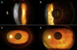 Córnea y pupila en el postoperatorio inmediato. A: Edema corneal 1.er día postoperatorio, caso 17; B: córnea al 7.o día posoperatorio, caso 17; C: irregularidad pupilar 7.o día postoperatorio, caso 24; D: córnea transparente 1.er día postoperatorio, caso 9.