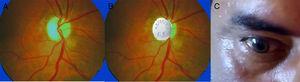 A y B. Examen de fondo de ojo; se observa papila pálida en «aspirina», signo de atrofia de nervio óptico. Fig. 1-C. Ojo derecho en midriasis arreactiva con la luz.