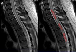 Resonancia magnética sagital de médula espinal cervical y torácica T1. Se observan áreas hipercaptantes de gadolinio que interrumpen el trayecto de la médula espinal hipointensa en T1. Fuente: RM de Instituto de Diagnóstico por imagen; elaborado por: Autores.