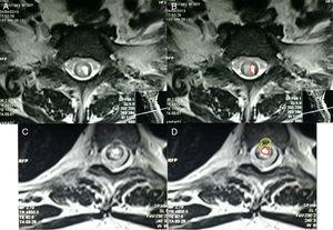-A y B. Resonancia magnética corte transversal de médula espinal cervical T1. Se observan áreas hipercaptantes de gadolinio de médula espinal hipointensa en T1. Fig. 4-C y D. RM, corte transversal de porción lumbar donde se observa protrusión saco dural y patrón de captación de gadolinio. Fuente: RM de Instituto de Diagnóstico por imagen; elaborado por: Autores.
