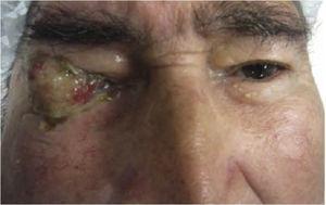 Ojo derecho con tumor conjuntival blanco-amarillento con zonas rosadas, apariencia irregular, bordes mal definidos, lobulado, de aspecto friable, con secreción amarilla-sanguinolenta.
