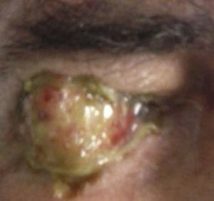 Tumor de apariencia «carnosa», friable, zonas de leucoplasia, zonas rosadas con secreción amarilla-sanguinolenta.