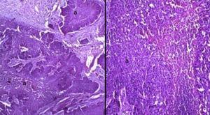 Microfotografía teñida con hematoxilina-eosina. Izquierda, muestra neoplasia con patrón en nodos (a) con áreas solidas de aspecto epitelial moderadamente diferenciado con perlas de queratina, que invade estroma con áreas de necrosis central y áreas de reacción desmoplásica. Derecha, ampliación de microfotografía; se observa neoplasia con áreas de necrosis central (áreas rosas) con pleomorfismo celular, citoplasma eosinófilo y núcleo hipercromático.