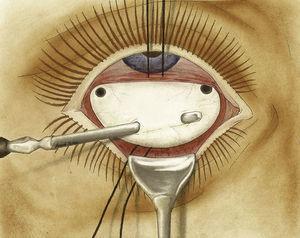 Posteriormente, se vertía solución de potasa o sosa cáustica en las perforaciones esclerales con la intención de crear una «cauterización química» y una cicatriz coriorretiniana alrededor del desgarro. Copia de foto tomada de: Arruga3.