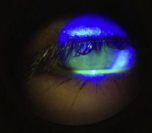 Epitelio corneal sin alteraciones aparentes.
