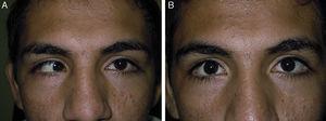 Paciente masculino de 18 años de edad. Esotropía derecha sensorial de 80 dioptrías prismáticas, comitante. Se le practicó retroimplante bimedial de 6mm con mioescleropexia retroecuatorial a nivel de vorticosas. A. Preoperatorio. B. Postoperatorio.