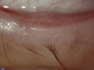 Foto clínica del borde palpebral del ojo derecho con aumento de 25× donde se evidencia la ausencia de orificios de salida de las glándulas de Meibomio.