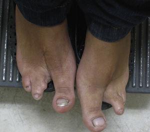 Foto clínica de ambos pies con sindactilia de los primeros 2 dedos de los pies.
