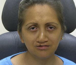 Foto clínica de la cara donde se evidencia la presencia de una cicatriz en el labio superior por la reparación quirúrgica del labio hendido además de madarosis en ambos ojos.