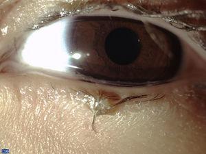 Foto clínica del globo ocular y anexos de la segunda paciente con aumento 6× donde se nota la presencia de madarosis, distriquiasis, abundante secreción mucosa tanto en las pestañas como en el borde del párpado inferior y ausencia de los orificios de salida de las glándulas de Meibomio.