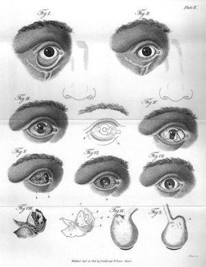 Diversas enfermedades oculares.
