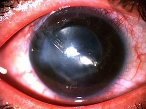 Imagen clínica mostrando edema corneal persistente.