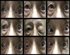 Fotografía clínica que muestra las 9 posiciones de la mirada donde se observa ausencia de ducciones horizontales, verticales y torsionales del ojo izquierdo.